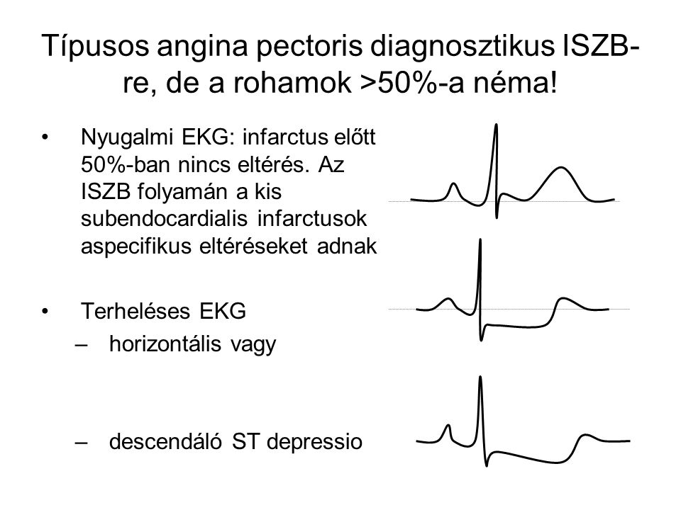 Típusos angina pectoris diagnosztikus ISZB-re, de a rohamok >50%-a néma!