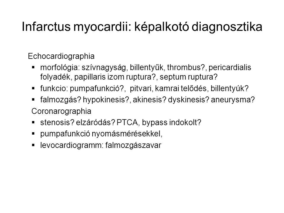 Infarctus myocardii: képalkotó diagnosztika