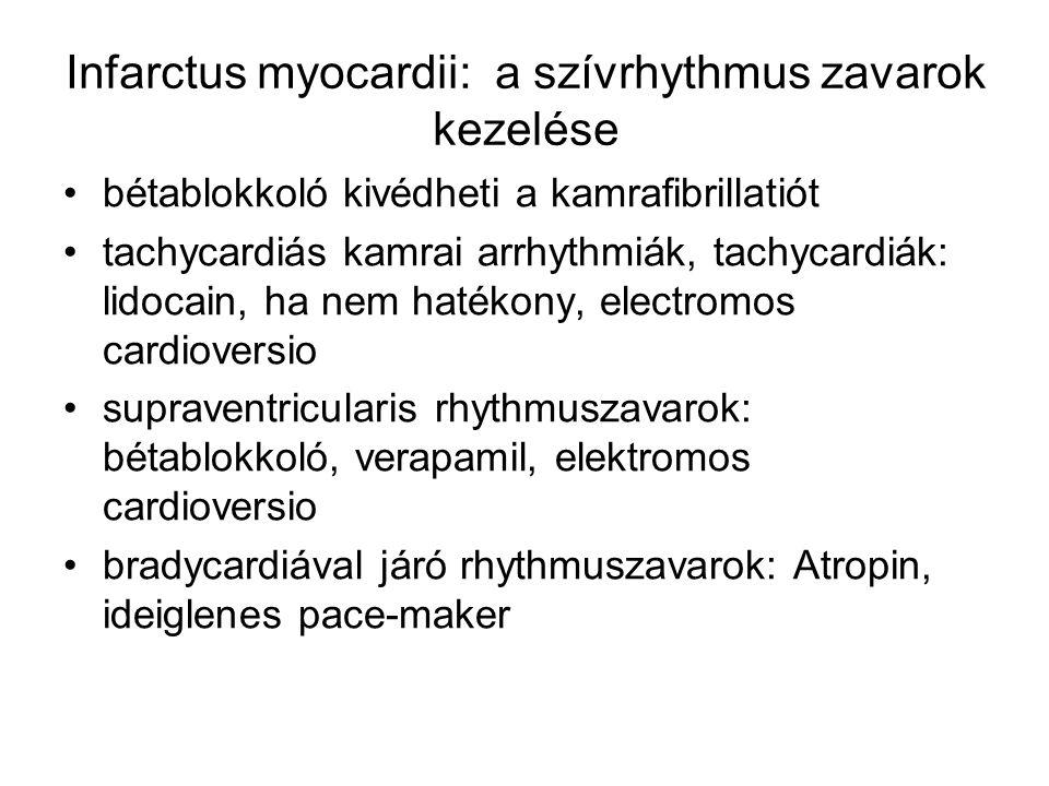 Infarctus myocardii: a szívrhythmus zavarok kezelése