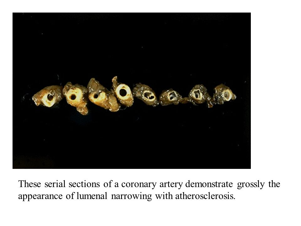 These serial sections of a coronary artery demonstrate grossly the appearance of lumenal narrowing with atherosclerosis.
