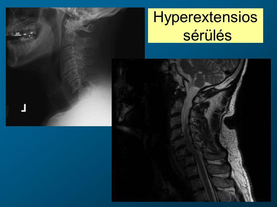 Hyperextensios sérülés
