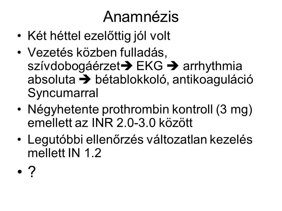 Anamnézis Két héttel ezelőttig jól volt