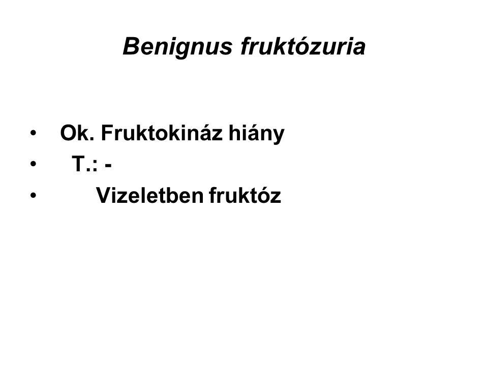 Benignus fruktózuria Ok. Fruktokináz hiány T.: - Vizeletben fruktóz