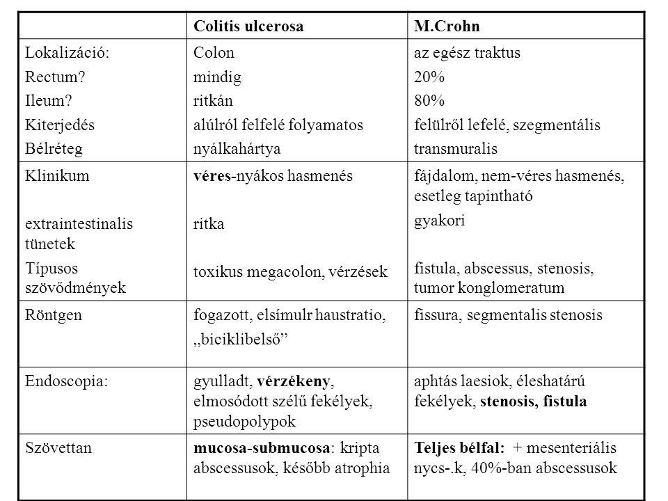 Colitis ulcerosa M.Crohn. Lokalizáció: Rectum Ileum Kiterjedés. Bélréteg. Colon. mindig. ritkán.