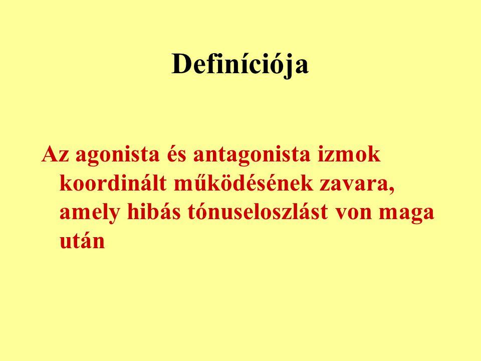 Definíciója Az agonista és antagonista izmok koordinált működésének zavara, amely hibás tónuseloszlást von maga után.
