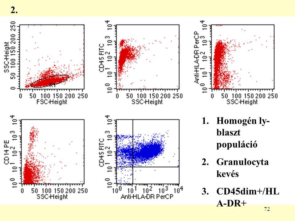 2. Homogén ly-blaszt populáció Granulocyta kevés CD45dim+/HLA-DR+