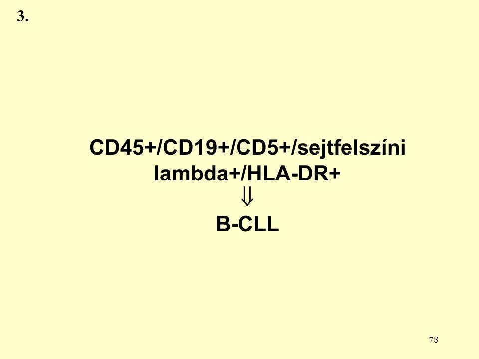 CD45+/CD19+/CD5+/sejtfelszíni lambda+/HLA-DR+