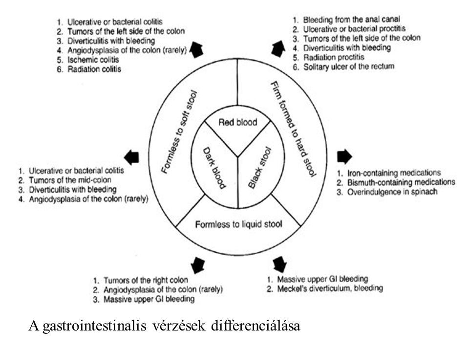A gastrointestinalis vérzések differenciálása