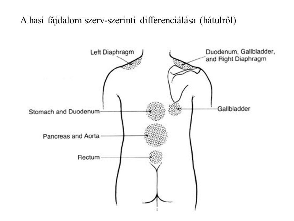 A hasi fájdalom szerv-szerinti differenciálása (hátulről)