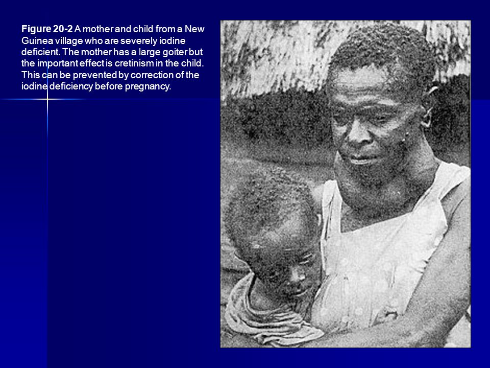 Figure 20-2 A mother and child from a New Guinea village who are severely iodine deficient.