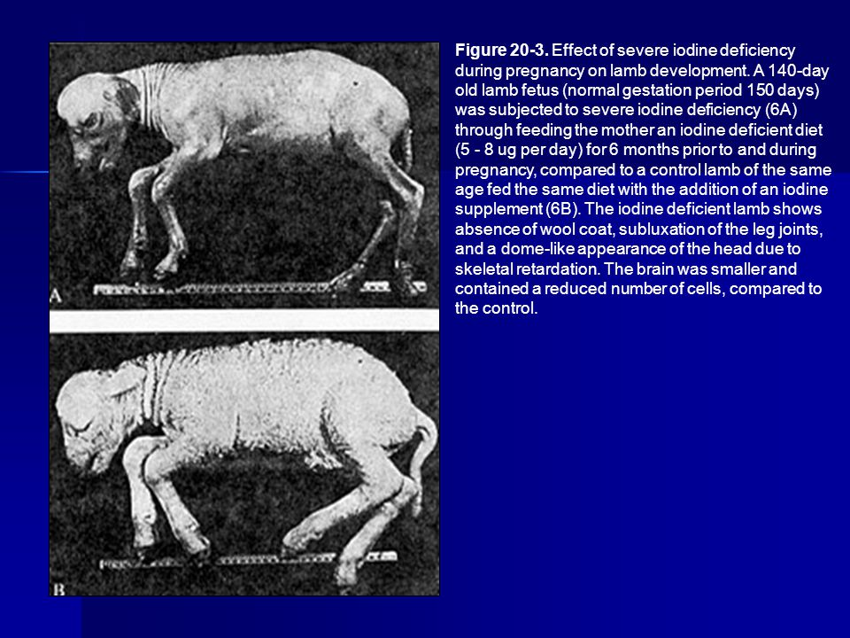 Figure 20-3. Effect of severe iodine deficiency during pregnancy on lamb development.