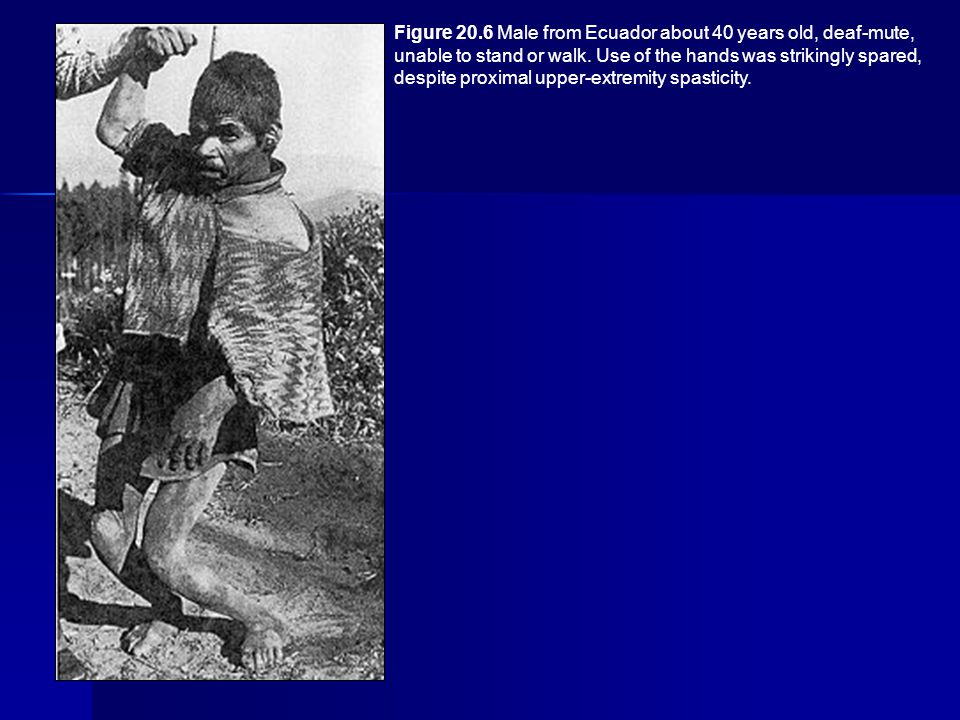 Figure 20.6 Male from Ecuador about 40 years old, deaf-mute, unable to stand or walk.