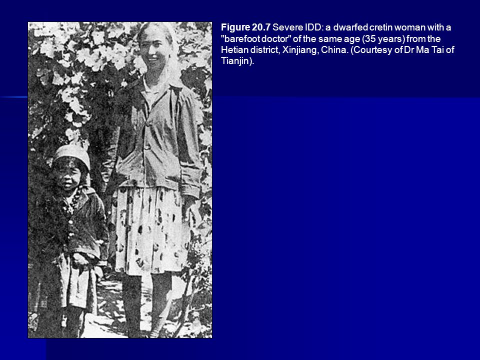 Figure 20.7 Severe IDD: a dwarfed cretin woman with a barefoot doctor of the same age (35 years) from the Hetian district, Xinjiang, China.