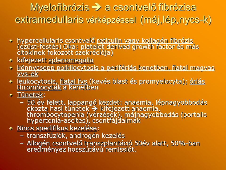 Myelofibrózis  a csontvelő fibrózisa extramedullaris vérképzéssel (máj,lép,nycs-k)