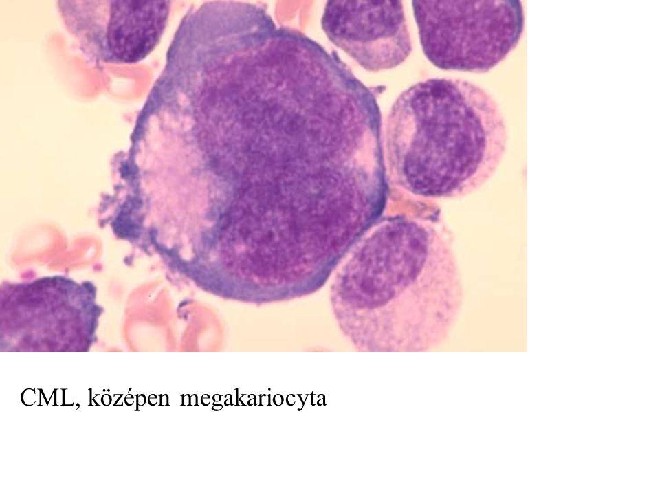 CML, középen megakariocyta