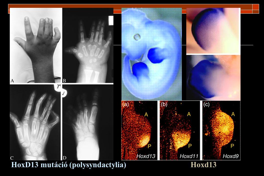 HoxD13 mutáció (polysyndactylia)