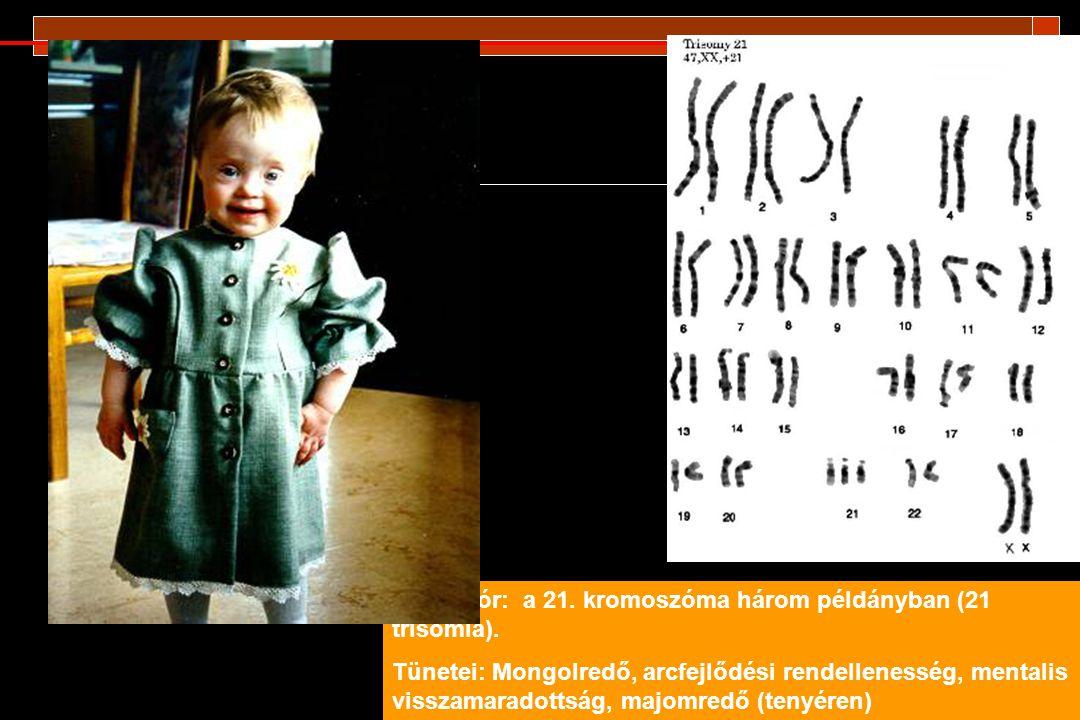 Down kór: a 21. kromoszóma három példányban (21 trisomia).