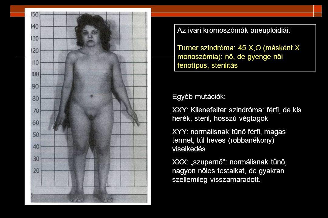 Az ivari kromoszómák aneuploidiái: Turner szindróma: 45 X,O (másként X monoszómia): nő, de gyenge női fenotípus, sterilitás