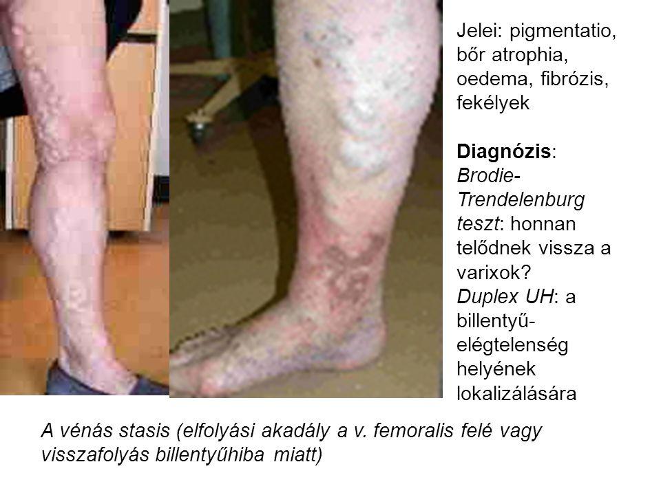 Jelei: pigmentatio, bőr atrophia, oedema, fibrózis, fekélyek