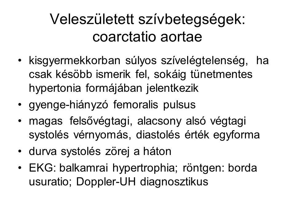 Veleszületett szívbetegségek: coarctatio aortae
