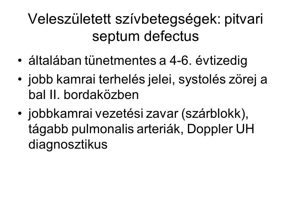 Veleszületett szívbetegségek: pitvari septum defectus
