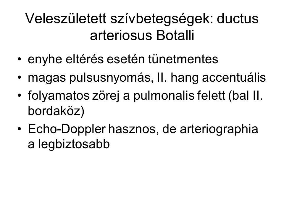Veleszületett szívbetegségek: ductus arteriosus Botalli