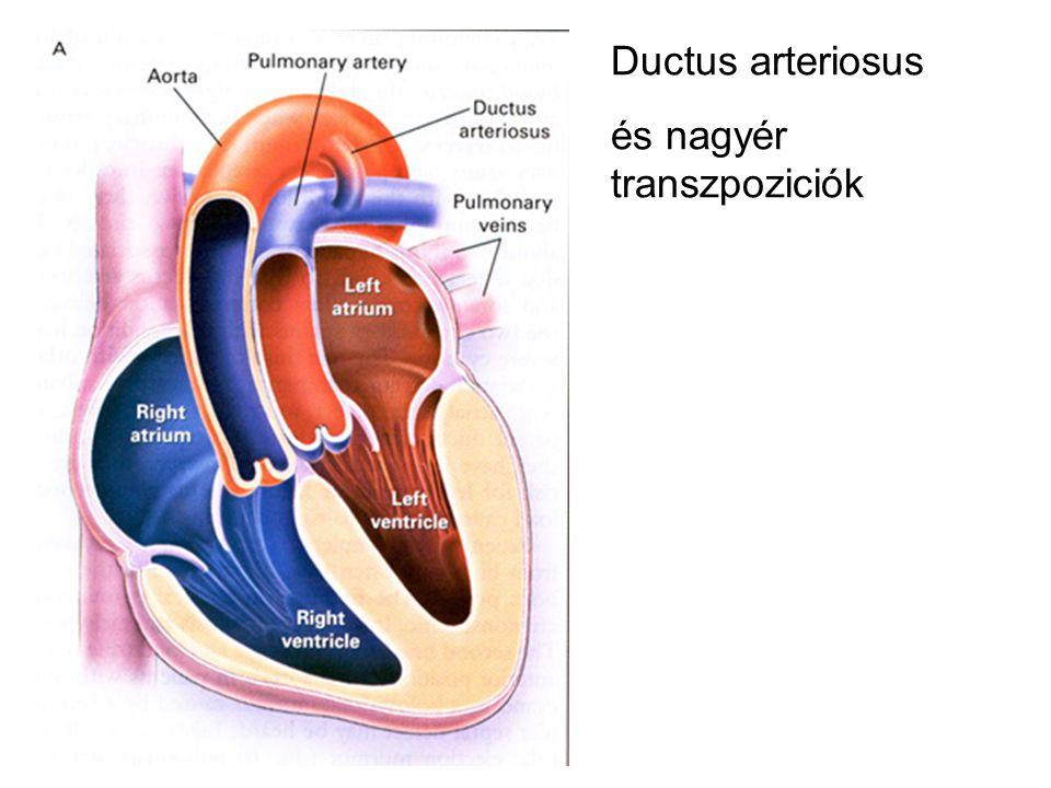 Ductus arteriosus és nagyér transzpoziciók