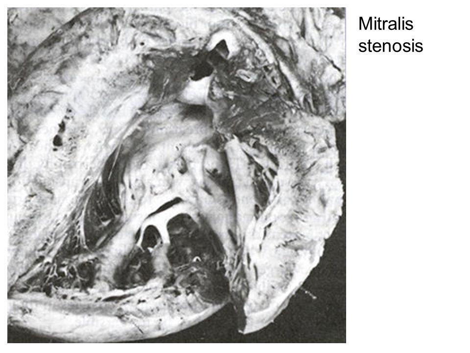 Mitralis stenosis