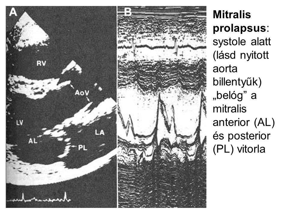 """Mitralis prolapsus: systole alatt (lásd nyitott aorta billentyűk) """"belóg a mitralis anterior (AL) és posterior (PL) vitorla"""