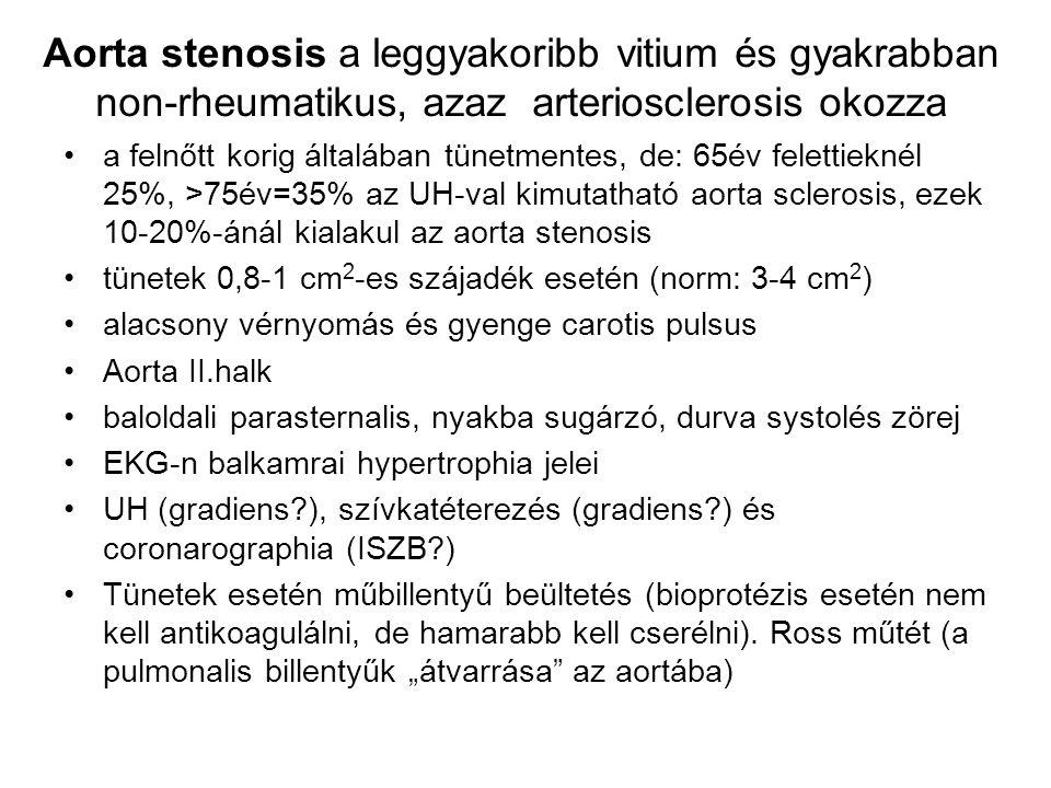 Aorta stenosis a leggyakoribb vitium és gyakrabban non-rheumatikus, azaz arteriosclerosis okozza