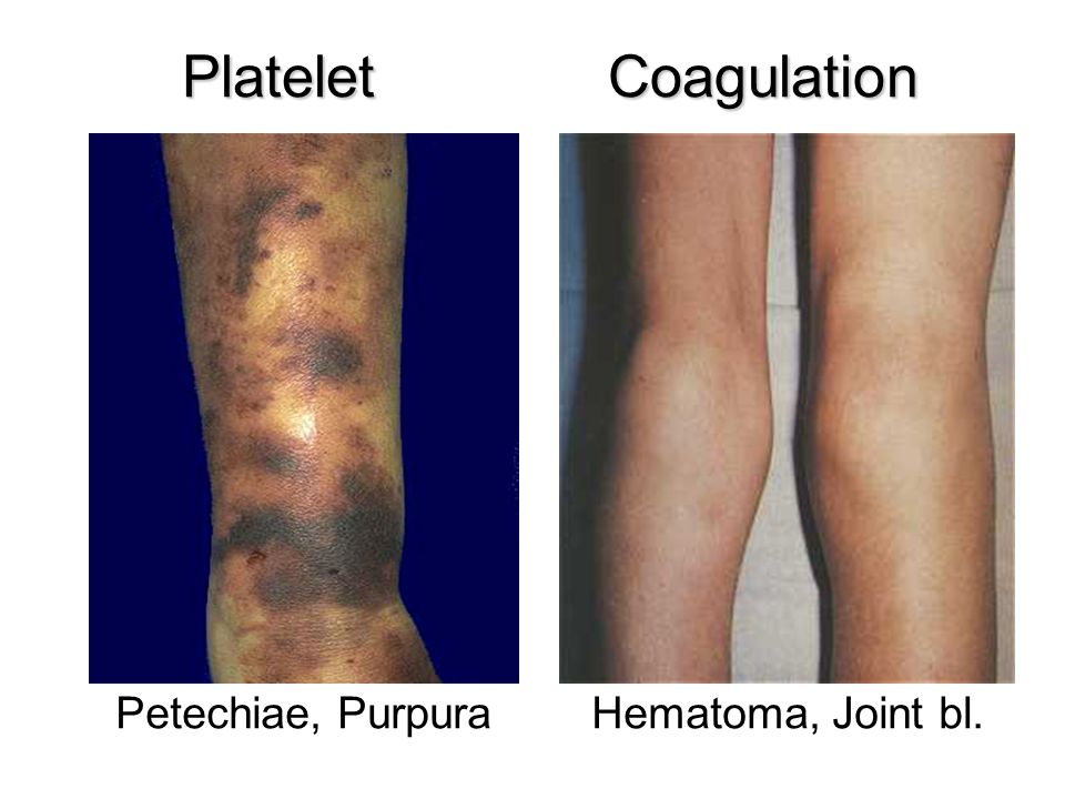 Platelet Coagulation Petechiae, Purpura Hematoma, Joint bl.