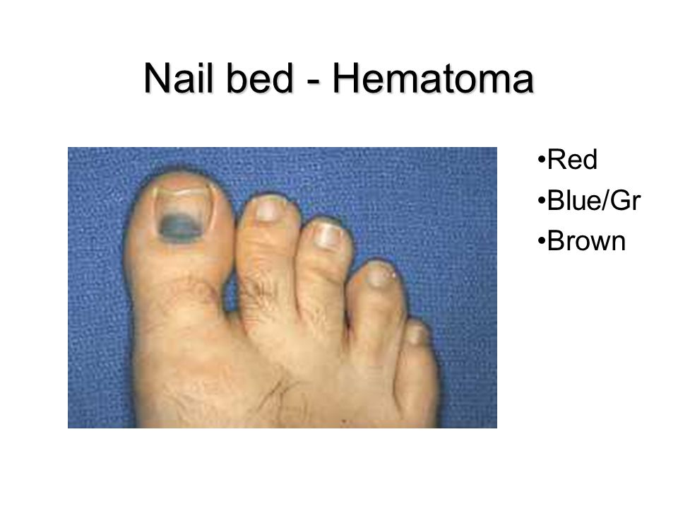 Nail bed - Hematoma Red Blue/Gr Brown