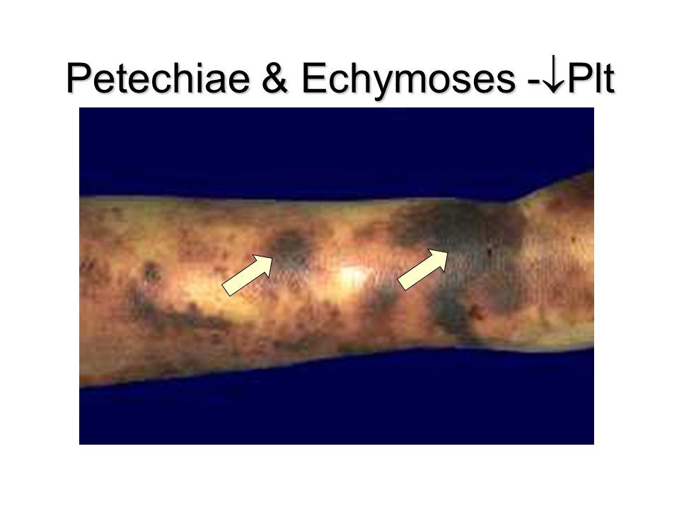 Petechiae & Echymoses -Plt