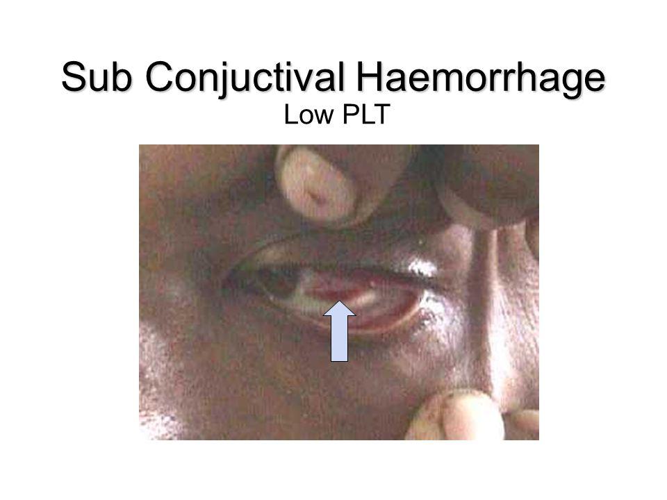Sub Conjuctival Haemorrhage