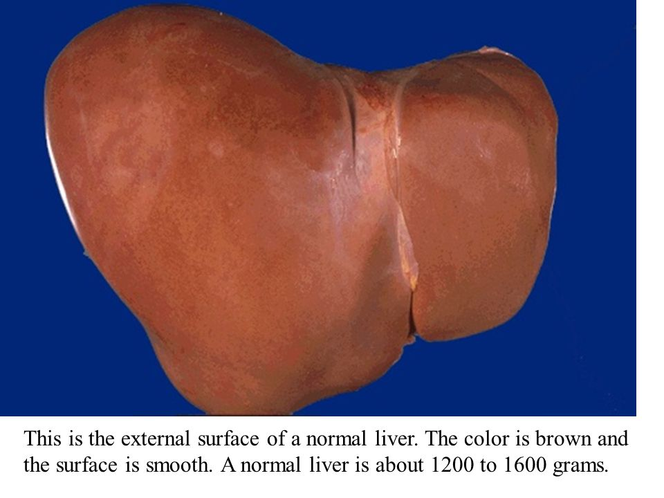 This is the external surface of a normal liver