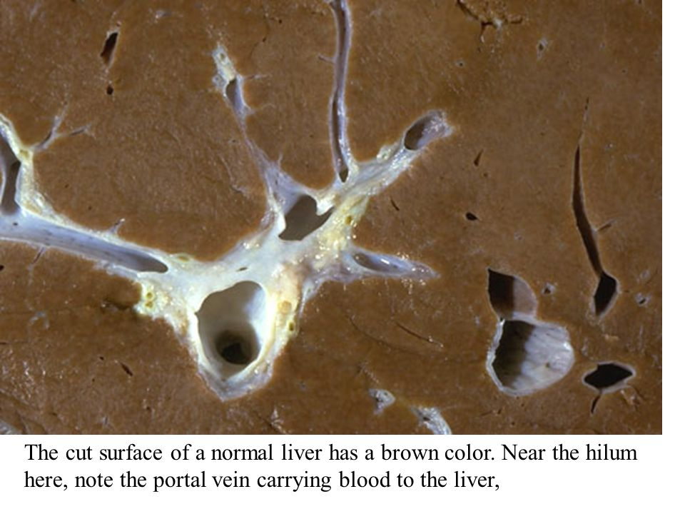 The cut surface of a normal liver has a brown color