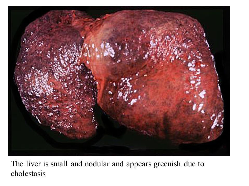 The liver is small and nodular and appears greenish due to cholestasis