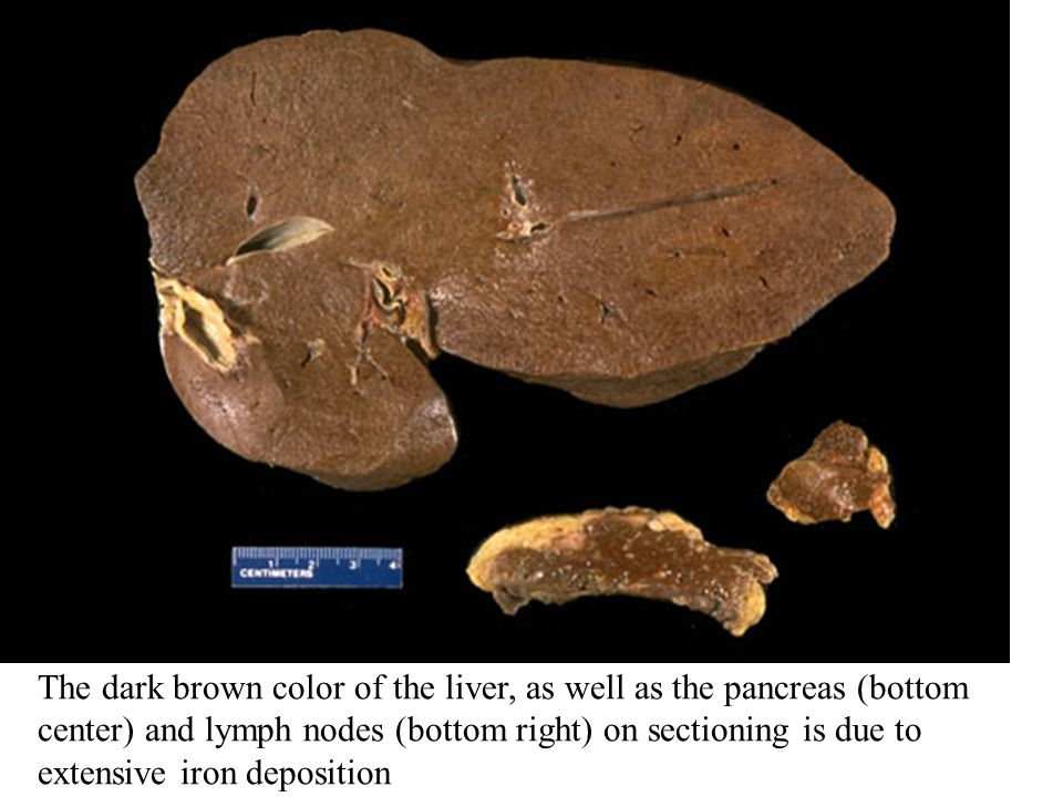 The dark brown color of the liver, as well as the pancreas (bottom center) and lymph nodes (bottom right) on sectioning is due to extensive iron deposition