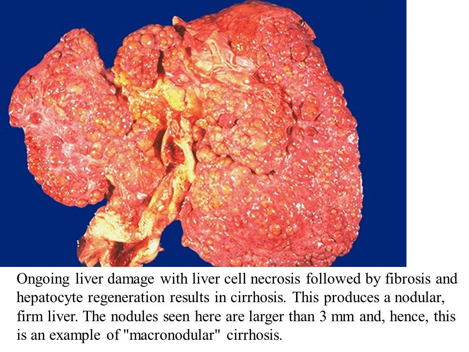 Ongoing liver damage with liver cell necrosis followed by fibrosis and hepatocyte regeneration results in cirrhosis.
