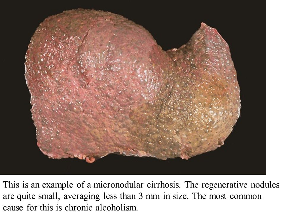 This is an example of a micronodular cirrhosis