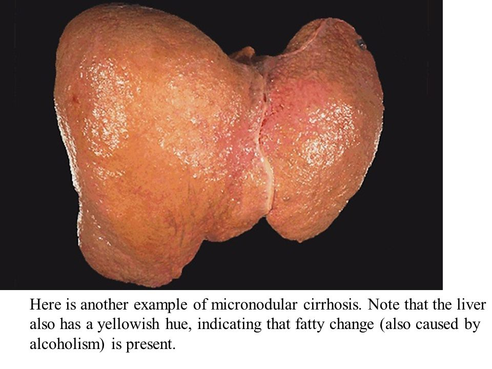 Here is another example of micronodular cirrhosis