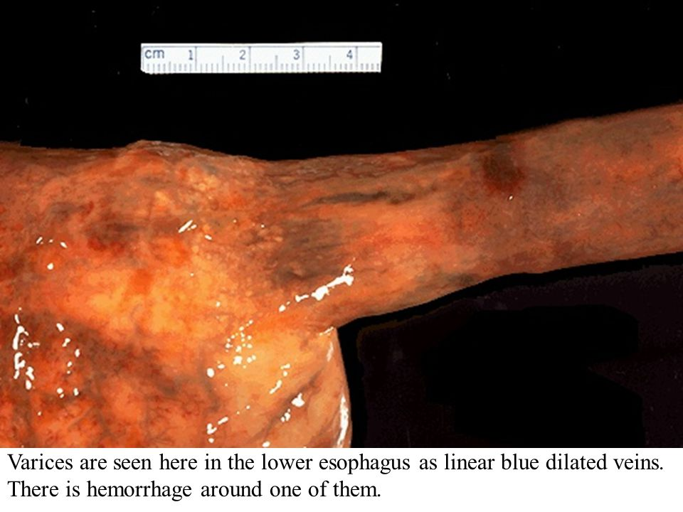 Varices are seen here in the lower esophagus as linear blue dilated veins.