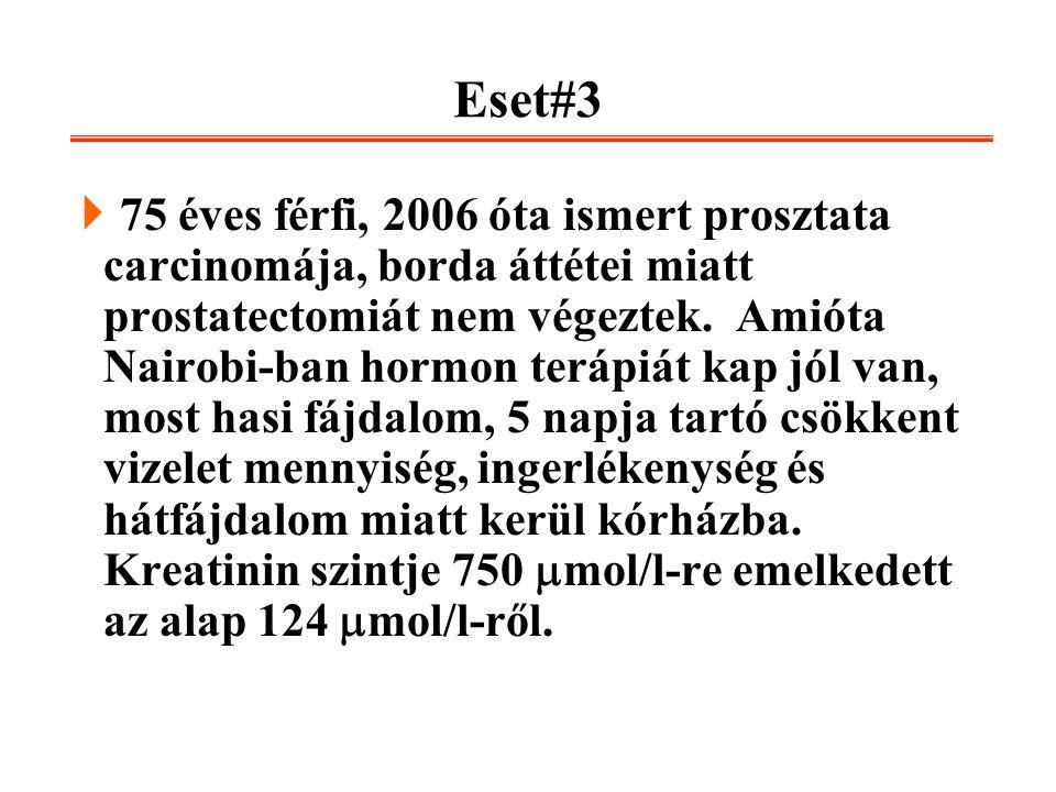 Eset#3