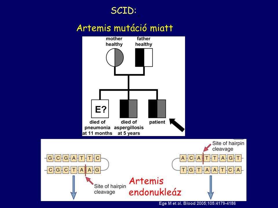 SCID: Artemis mutáció miatt Artemis endonukleáz .