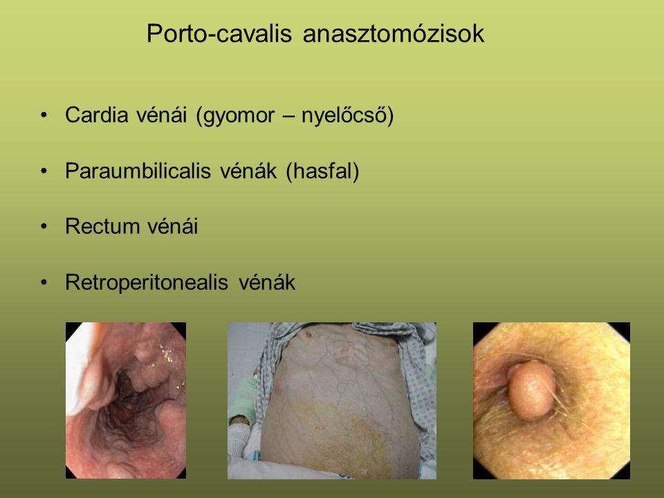 Porto-cavalis anasztomózisok