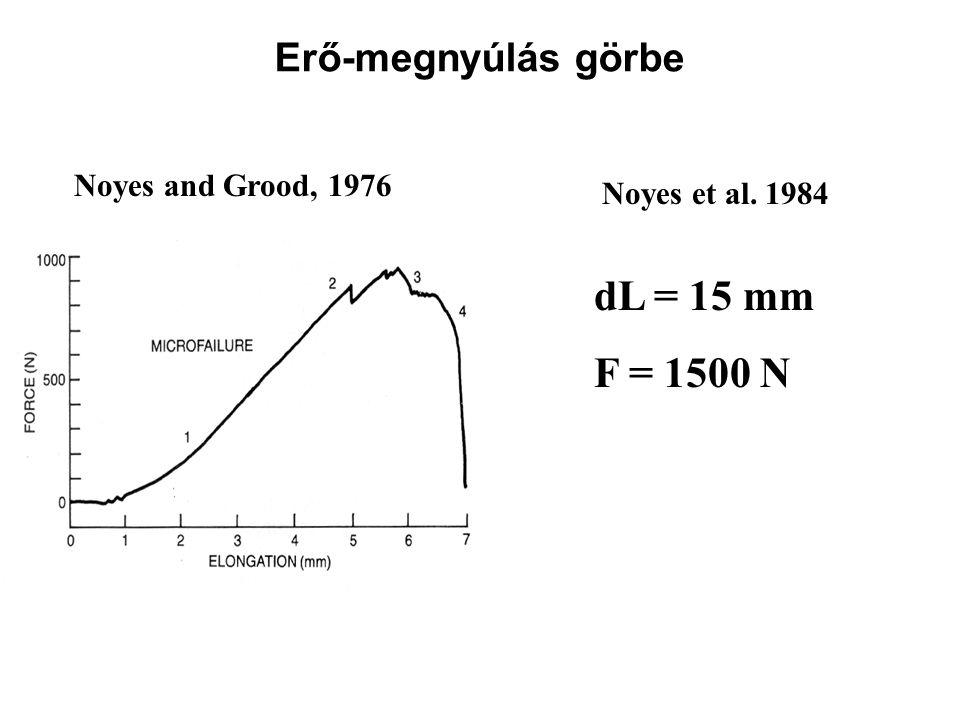 dL = 15 mm F = 1500 N Erő-megnyúlás görbe Noyes and Grood, 1976