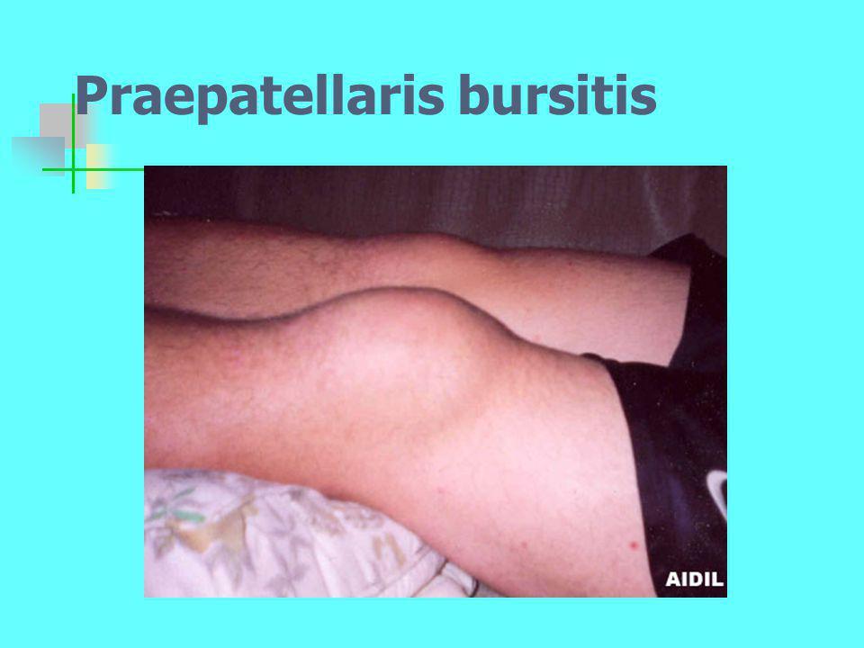 Praepatellaris bursitis