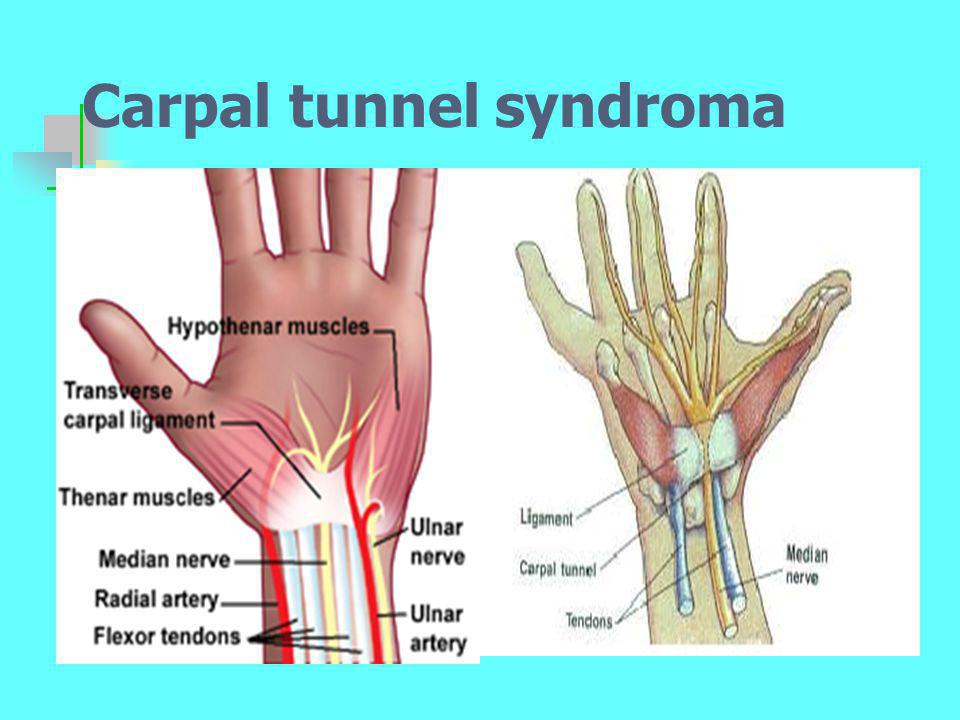 Carpal tunnel syndroma
