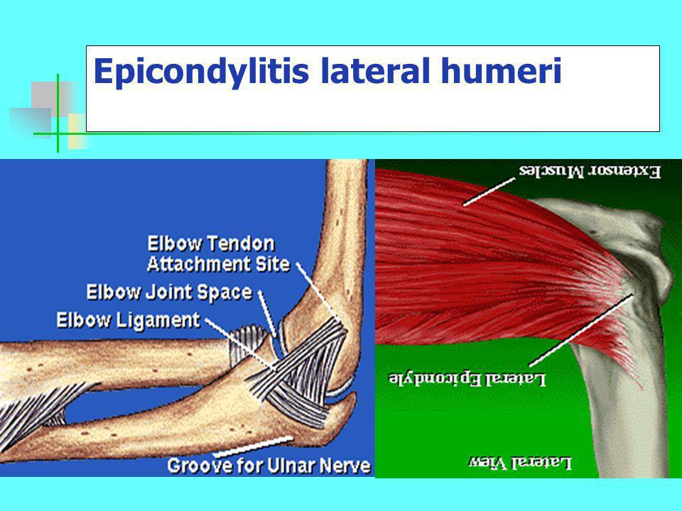 Epicondylitis lateral humeri
