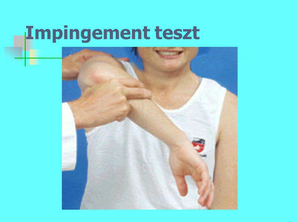Impingement teszt
